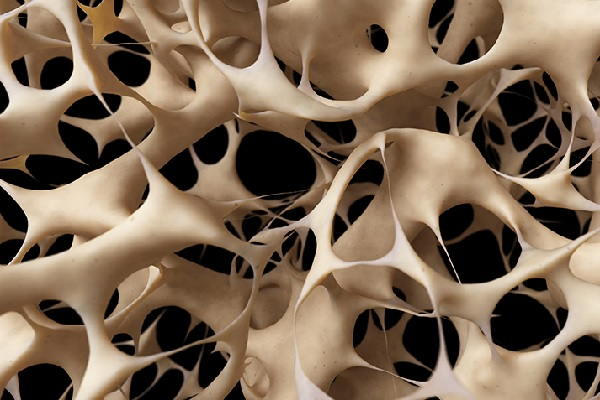 Fonte: National Osteoporosis Foundation