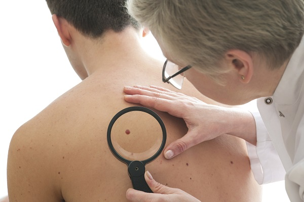 Câncer de pele: prevenção e identificação são importantes