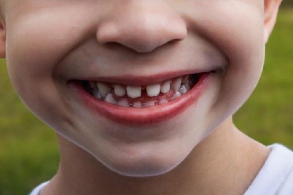 Estudo da saliva pode ajudar a prevenir a cárie em bebês e crianças