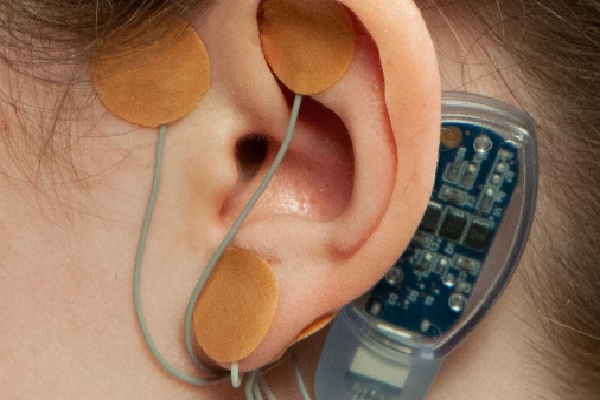 FDA permite a comercialização do primeiro dispositivo médico para alívio da dor associada à síndrome do intestino irritável