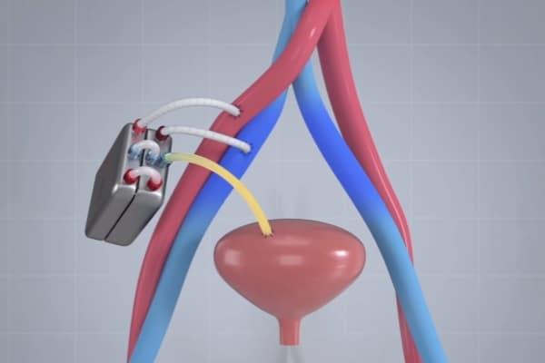 Fonte: Reprodução, The Kidney Project